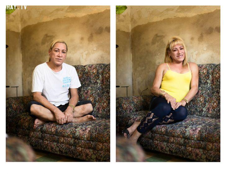 trước và sau phẩu thuật chuyển đổi giới tính