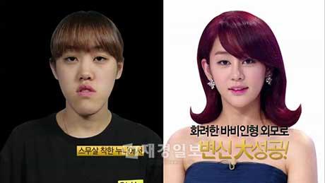 Cô gái Hàn Quốc hoàn toàn lột xác sau khi phẩu thuật thẩm mỹ
