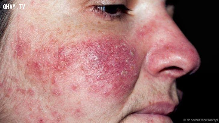 ảnh rận sống trên da mặt,da mặt,Demodex folliculorum