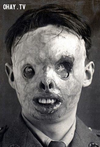 Mặt nạ nhìn thật ghê tởm, nhưng họ, ở thời điểm đó,  đã dùng chúng để che đi gương mặt bị tàn pá phía dưới