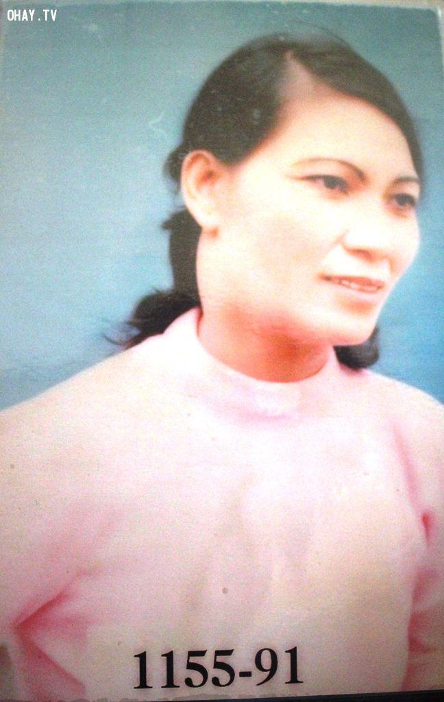 Ảnh bà Tiến năm 1991 khi mắc bệnh ung thư