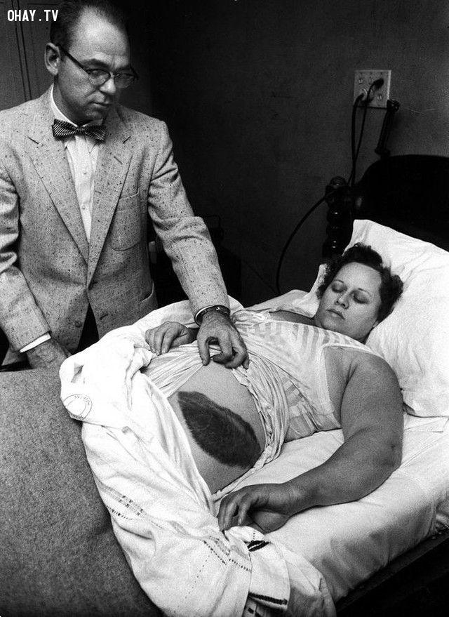 Ann Hodges là người duy nhất trong lịch sử bị thiên thạch đâm trúng, nó để lại một vết bỏng lớn trên người của cô (năm 1954).