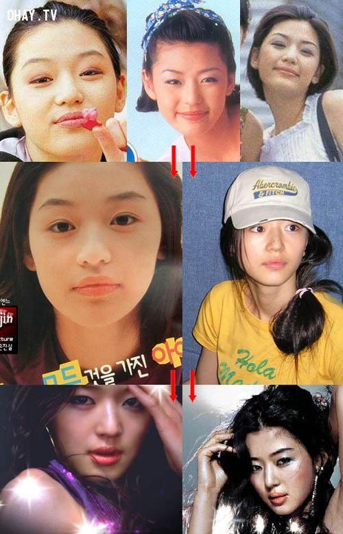 ảnh phẩu thuật thẩm mỹ,sao hàn,trước và sau phẫu thuật