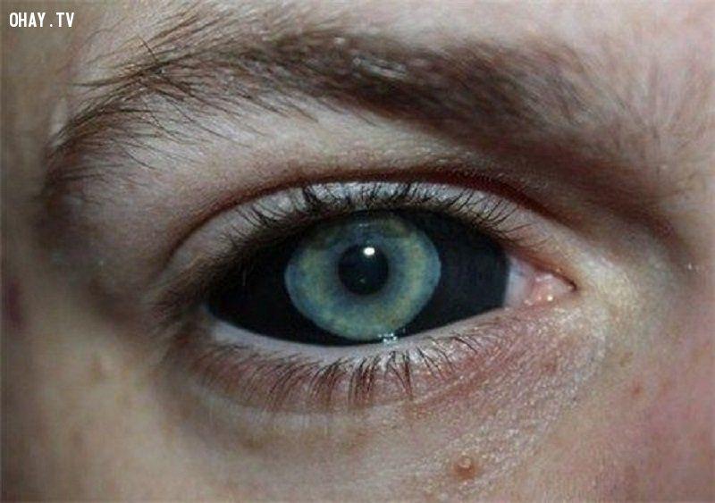 ảnh hình xăm,xăm hình,vị trí xăm hình,xăm hình kinh dị,xăm mắt,xăm hàm trên,xăm lưỡi,xăm răng,xăm huỳnh quang,xăm bên trong môi,xăm tóc,xăm nách