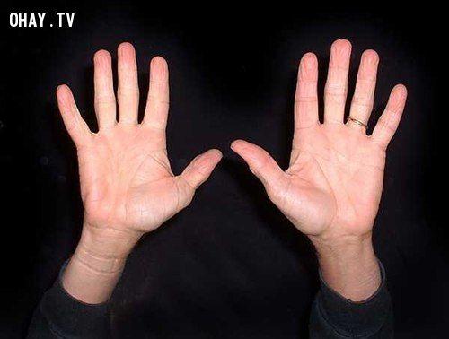 Xòe 2 bàn tay