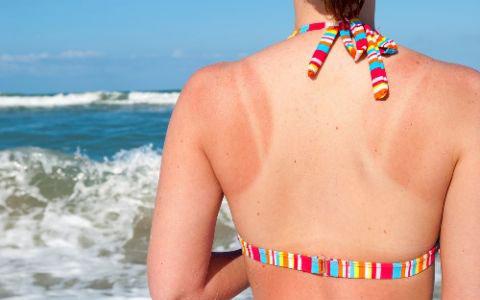 7 cách tự nhiên chống cháy nắng cho làn da của bạn