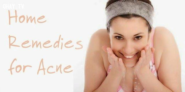Home Remedies for Acne Trị mụn tự nhiên hiệu quả