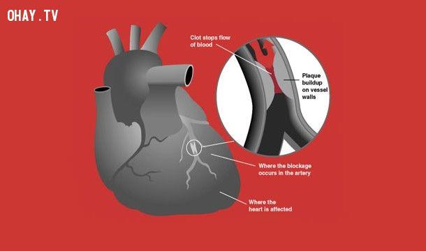hút thuốc gây đau tim