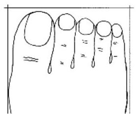 Bàn chân có dnags hình vuông, hay còn gọi là bàn chân Giselle, bạn là nguwoif suy nghĩ cẩn thận, luôn cân nhắc khi đưa ra một quyết định