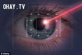 Phẫu thuật mắt laser