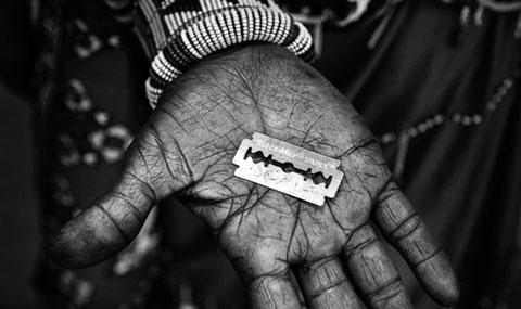 Kinh hoàng hủ tục cắt xén âm đạo phụ nữ ở Châu Phi