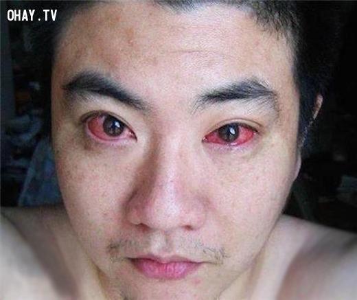 ảnh mù lòa,smartphone,ung thư mắt