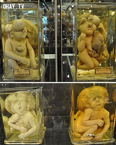 Bảo tàng Vrolik - Hà Lan
