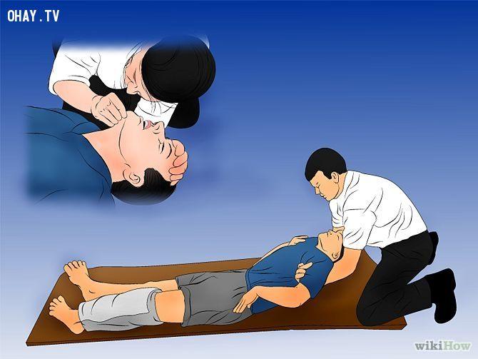 hô hấp nhân tạo cho người bị sét đánh