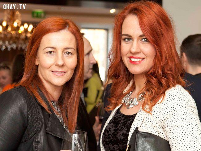 ảnh Tóc đỏ,người celtic tóc đỏ,Người scotland,Vitamin D,bình đẳng giới