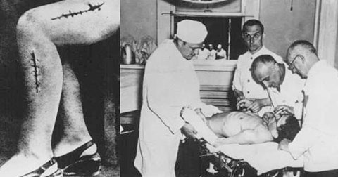 Những thí nghiệm vô nhân tính nhất trong lịch sử loài người (phần I)