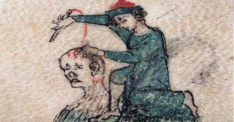 4 cách chữa bệnh kinh dị thời trung cổ