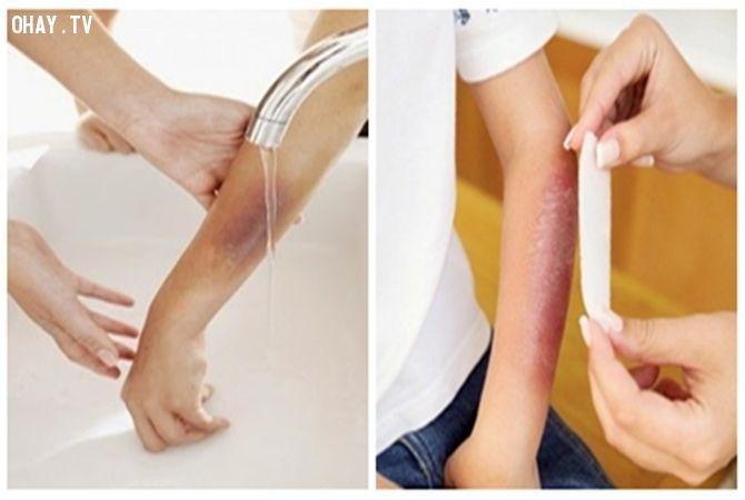 Xả vết bỏng trực tiếp dưới vòi nước và tra thuốc để giảm đau vết bỏng