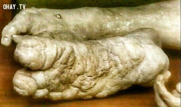 phần xương tay bị biến dạng của Merrick