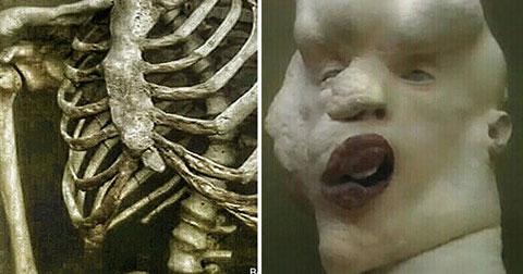 Những hình ảnh kinh ngạc về bộ xương giải phẫu của người Voi