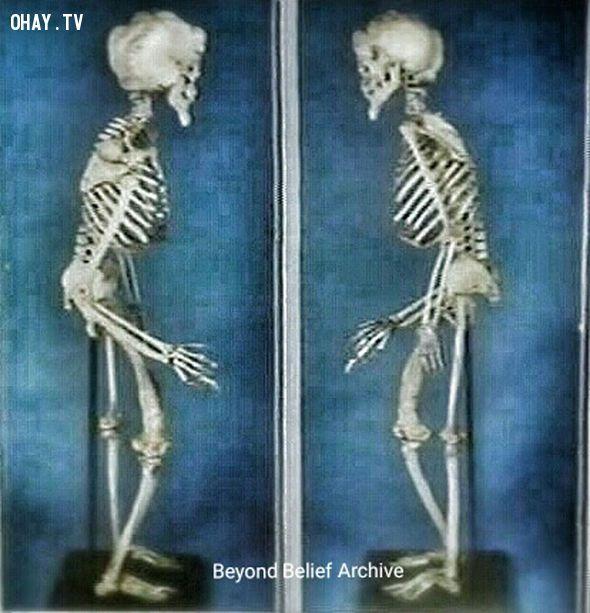 Toàn bộ khung xương của người Voi Merrick