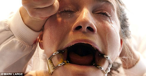 Sốc với hình ảnh cô gái tình nguyện bị tra tấn trong vòng 10 tiếng đồng hồ