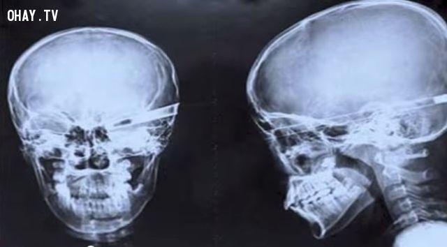 15 đồ vật đáng sợ nhất từng được tìm thấy trong các tấm phim X-quang