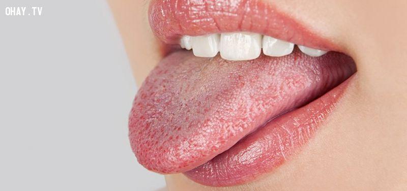 Lưỡi nói lên tình trạng sức khỏe của bạn