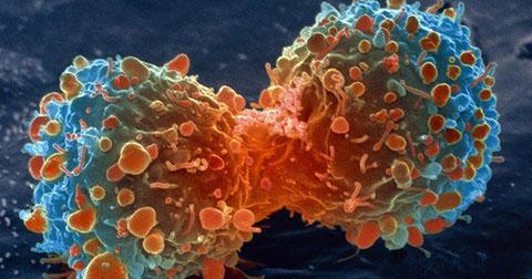 9 dấu hiệu cho thấy bạn có thể đã bị ung thư