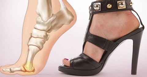 Điều gì xảy ra khi bạn mang giày cao gót?