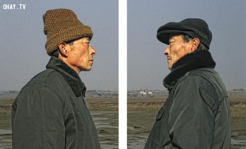 ảnh song sinh,sinh đôi,số phận,cuộc đời,Gao Rongguo
