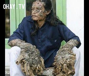 ảnh quái bệnh khó tin,bệnh lạ,bệnh kuru,bệnh trypanosoma,xác chết biết đi,nhiễm trùng guinea,hội chứng người sói,Epidermodysplasia verruciformis