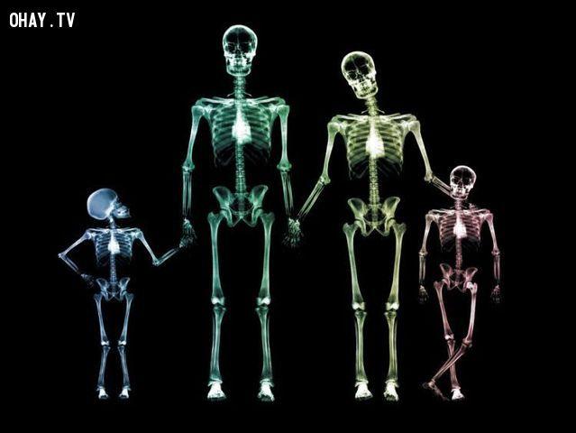 Khi mọi thứ được nhìn bằng X quang
