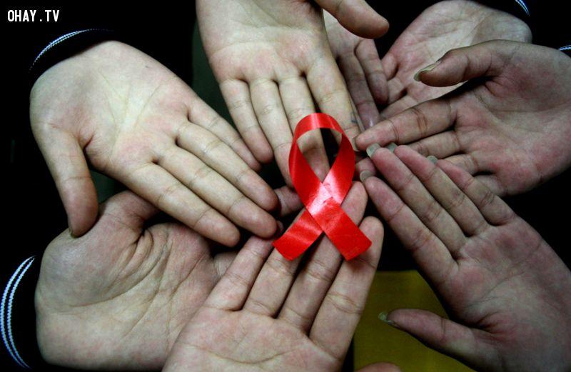 ảnh bệnh hiv,aids,có thể bạn chưa biết