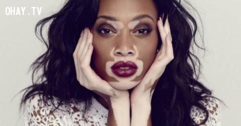 10 người mẫu nữ chứng minh rằng không có ranh giới cho vẻ đẹp thật sự