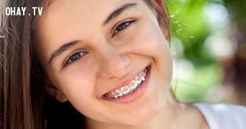 11 nỗi khổ chỉ người niềng răng mới hiểu