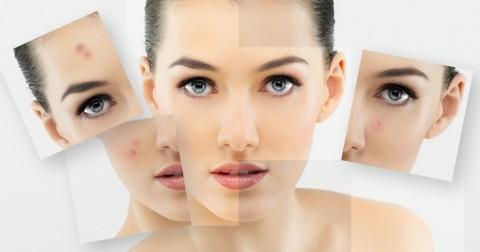 Chia sẻ mẹo thường bị lầm tưởng nhưng hiệu quả cho da mụn