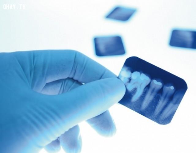6. Răng khôn,bằng chứng tiến hóa,sự tiến hóa của loài người,phép lạ của tiến hóa,tổ tiên con người