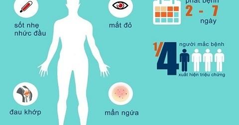 Phát hiện 2 ca nhiễm virus Zika đầu tiên ở Việt Nam