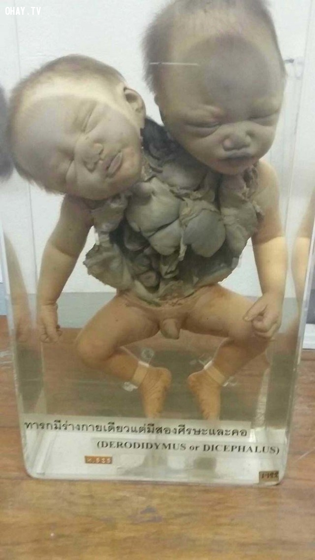 Trong điều kiện y tế ngày xưa rất khó cứu sống những cặp song sinh dính liền.,bảo tàng của cái chết,khám phá