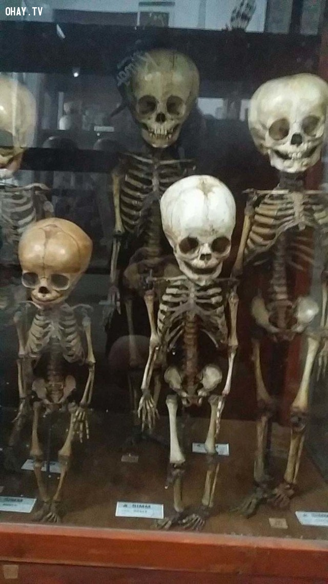 ,bảo tàng của cái chết,khám phá