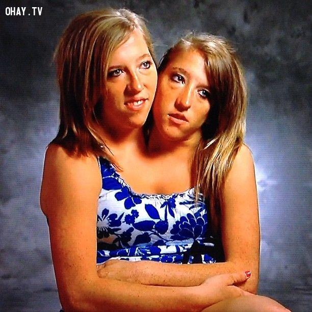 12. Chị em song sinh,những người có hình dạng kì lạ,những người dị nhất,những người khó tin nhưng có thật,những người có hình dạng dị nhất
