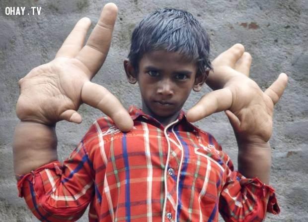 26. Cậu bé này được sinh ra với bàn tay khổng lồ,những người có hình dạng kì lạ,những người dị nhất,những người khó tin nhưng có thật,những người có hình dạng dị nhất