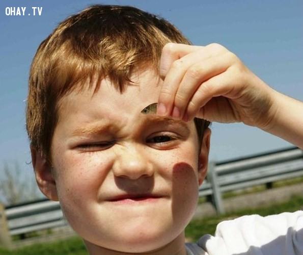 3. Cá ký sinh trong phổi,động vật ký sinh,loài ký sinh đáng sợ,sán, giun, ấu trùng ruồi trâu,sán,giòi,ấu trùng giòi,ấu trùng ruồi trâu,Chuyện những loài ký sinh đáng sợ,ký sinh trên cơ thể người