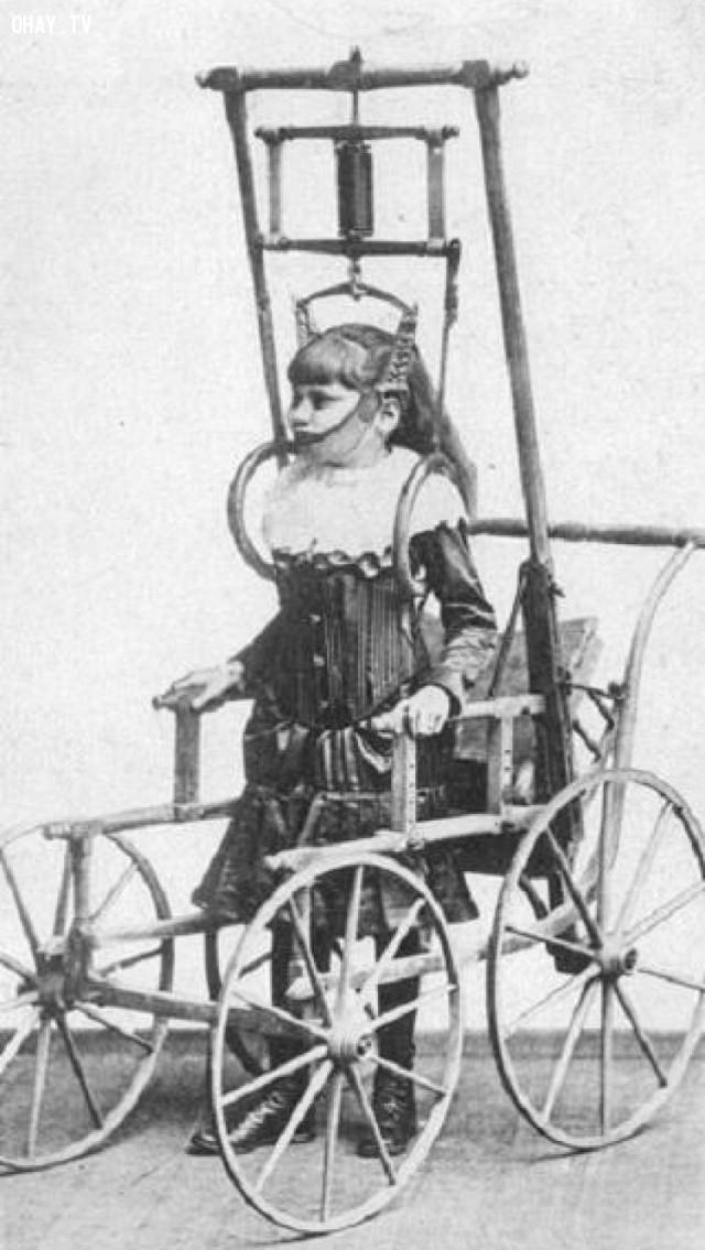 Đây là thiết bị điều trị chứng vẹo cột sống vào năm 1878.,hình ảnh đáng sợ,khám phá,hình ảnh y khoa