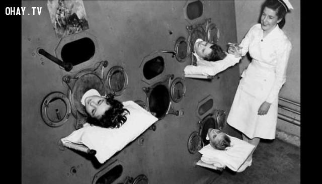 Lá phổi sắt. ,hình ảnh đáng sợ,khám phá,hình ảnh y khoa