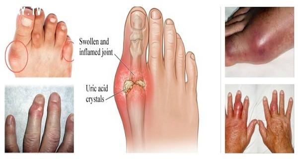 Nguyên nhân của bệnh gút là gì,bệnh gút là gì,bệnh gút và cách chữa trị,cách chữa bệnh gút