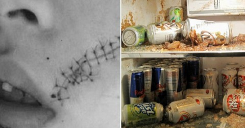 Khâu 38 mũi vì cha đặt thứ đồ uống này vào trong ngăn đá tủ lạnh