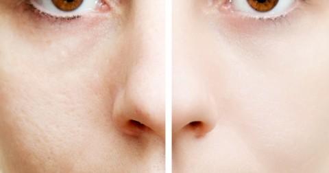 7 nguyên nhân không ngờ khiến khuôn mặt lão hóa sớm