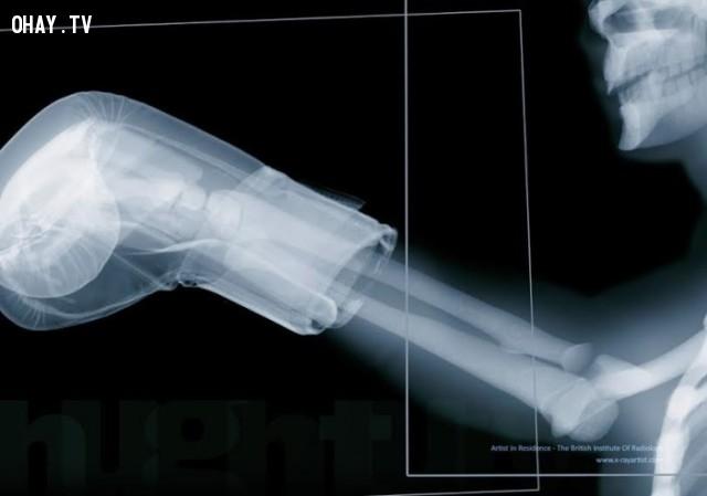 Hình tay người trong găng tay đấm bốc có thể khiến bạn băn khoăn khi thấy xương cổ tay quá ư nhỏ bé.,hình ảnh x-quang,cơ thể người,những điều thú vị trong cuộc sống